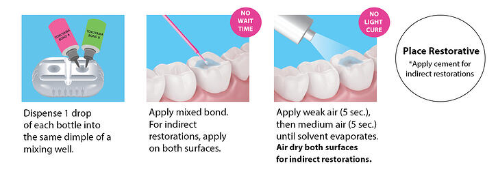Dental Adhesive Procedure